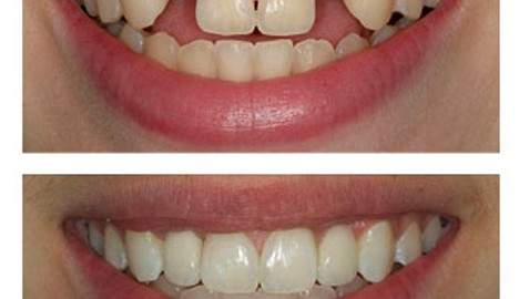 implant-before-and-after2